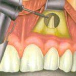 chirurgia-orale-2