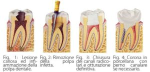 endodonzia1
